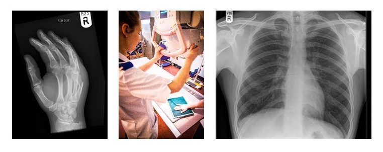 Diagnostic Radiography BSc | University of Leeds